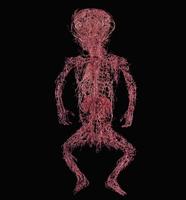 死産児の動脈の着色レジンキャスト複製