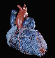 ヒトの心臓のレジンキャスト複製 前面