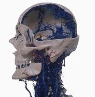 ヒトの頭部と血管のレジンキャスト複製