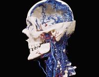 ヒトの頭部と首の血管のレジンキャスト複製
