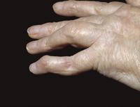 がん首形に変形したヒトの小指