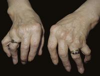 リウマチ性関節炎の手 尺骨偏位と中手指関節の部分的破壊
