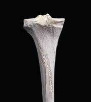 ヒトの左脛骨 背面から 32268000765| 写真素材・ストックフォト・画像・イラスト素材|アマナイメージズ