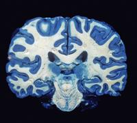 ヒトの脳の冠状断面 灰白質(青) 32268000769| 写真素材・ストックフォト・画像・イラスト素材|アマナイメージズ