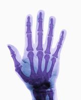 ヒトの手のX線 32268000781| 写真素材・ストックフォト・画像・イラスト素材|アマナイメージズ