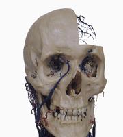 ヒトの頭頸部の血管の一部 レジンキャスト複製