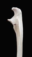 ヒトの下腕の右尺骨上部 側面