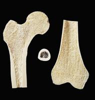 ヒトの大腿骨の断面