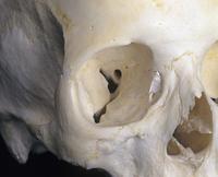 ヒトの頭蓋骨 右眼窩の骨 32268000811| 写真素材・ストックフォト・画像・イラスト素材|アマナイメージズ