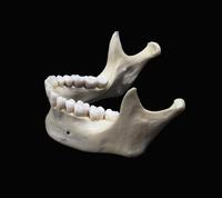 ヒトの下顎の骨