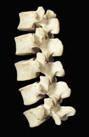 ヒトの腰椎 32268000827| 写真素材・ストックフォト・画像・イラスト素材|アマナイメージズ