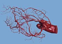 アテローム性動脈硬化症の心臓