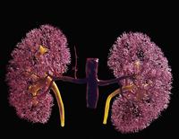 ヒトの腎臓 動脈血管のレジンキャスト複製