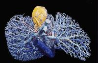 ヒトの肝臓(青)と胆嚢(黄色)