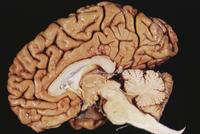 ヒトの脳 矢状断面