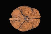ヒトの脳の下部