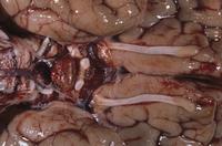 ヒトの脳底