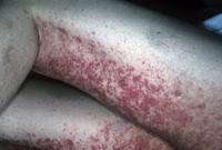 重症熱性血小板減少症候群の患者