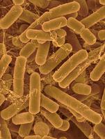 バクテロイデス属の一種 32268001923| 写真素材・ストックフォト・画像・イラスト素材|アマナイメージズ