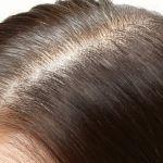 女性の薄毛が増えている!なぜ薄毛になるのか・原因と対策についてのサムネイル画像