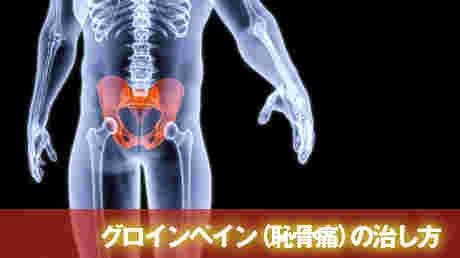 グロインペイン症候群(恥骨痛)の治し方 - 恥骨炎解消動画講座