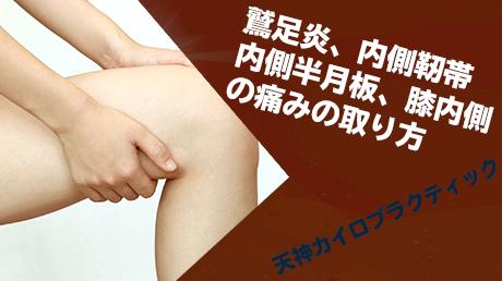 鷲足炎、内側靭帯、内側半月板、膝内側の痛みの取り方