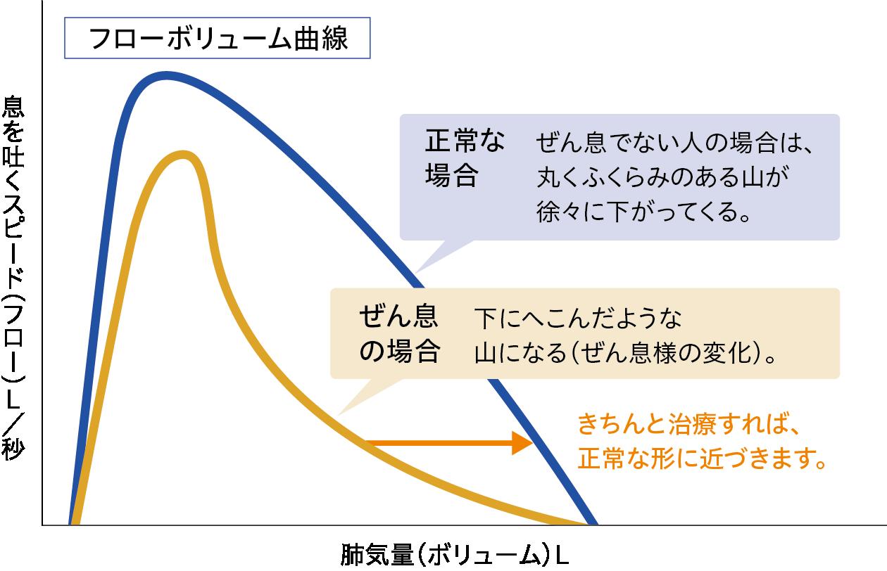 フローボリューム曲線(正常とぜん息)
