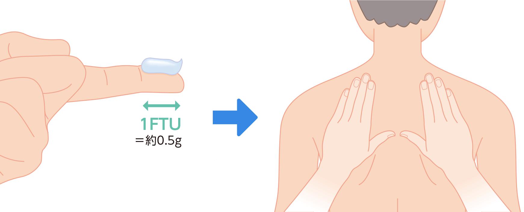 薬物療法:アトピー性皮膚炎の炎症と薬