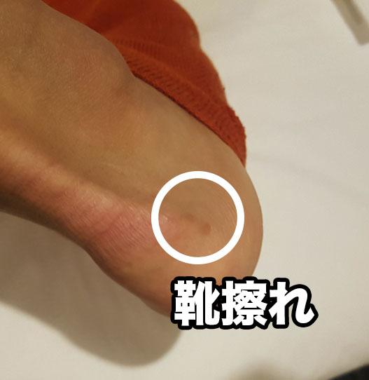 ランニングシューズでかかとに生じる靴擦れを防止する方法