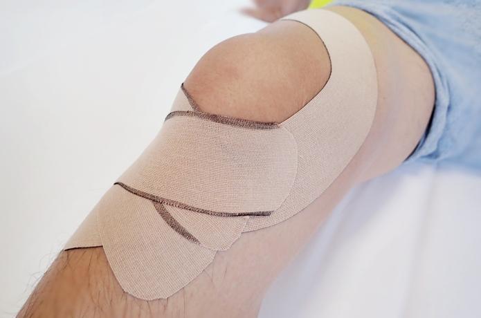 いざという時も安心!痛むときも簡単にできる膝のテーピング術【動画付】