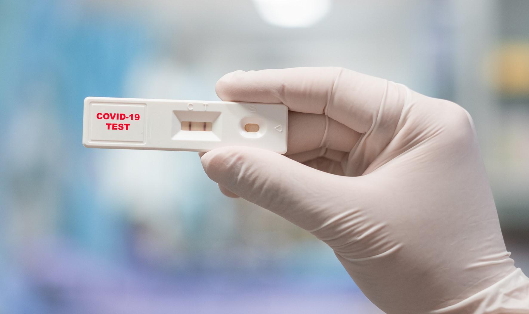 ライザップ、全従業員とユーザーに新型コロナウイルス抗体検査を無償実施