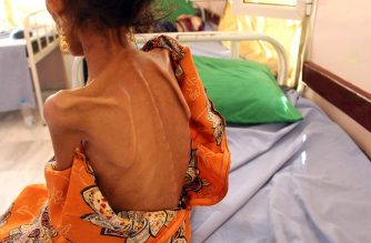 Fatima Hadi, a 12-year-old displaced Yemeni girl suffering from acute malnutrition, lies on a bed at a hospital in Yemen's northwestern Hajjah province, on February 25, 2019. - The UN said today it had reached food aid warehouses on the frontlines in Yemen, holding enough supplies to feed millions of people, for the first time since September. (Photo by ESSA AHMED / AFP)