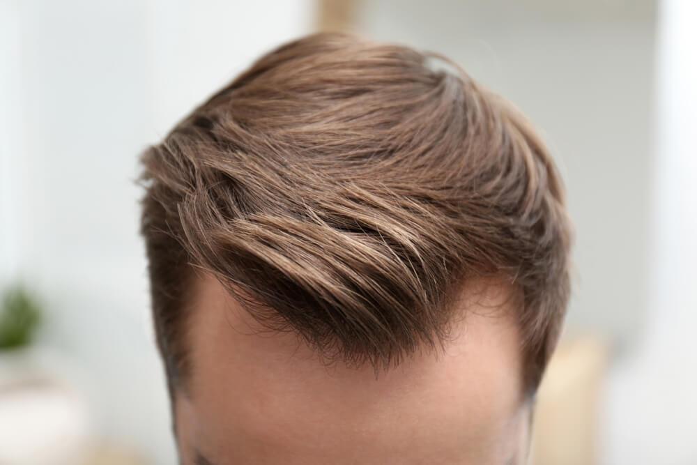 M字型の薄毛
