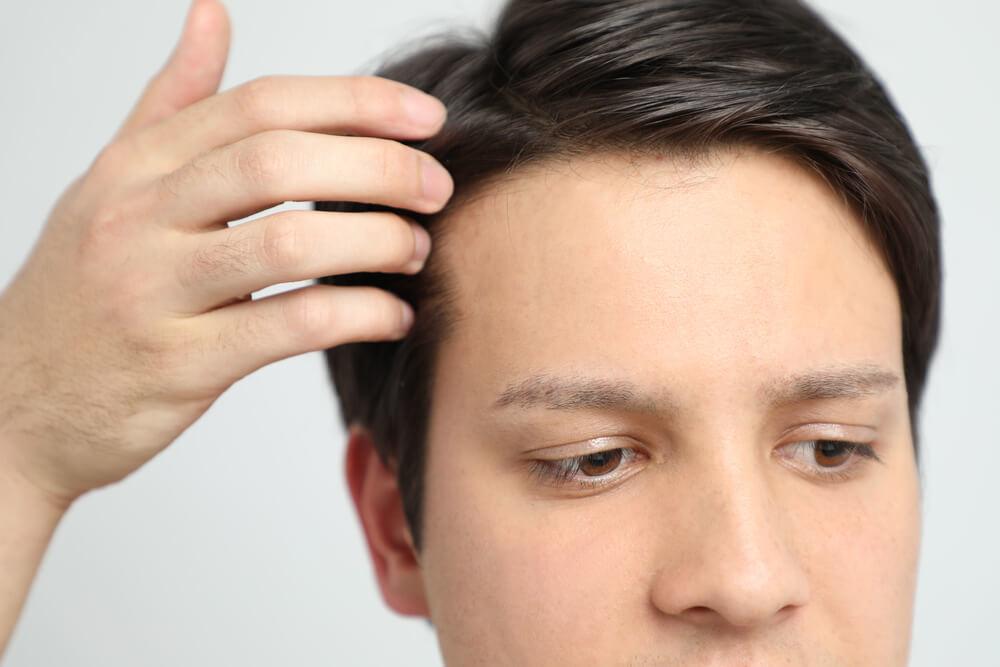 生え際から後退していくタイプの薄毛