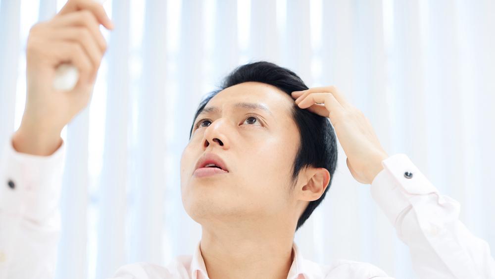 薄毛に悩む若い男性