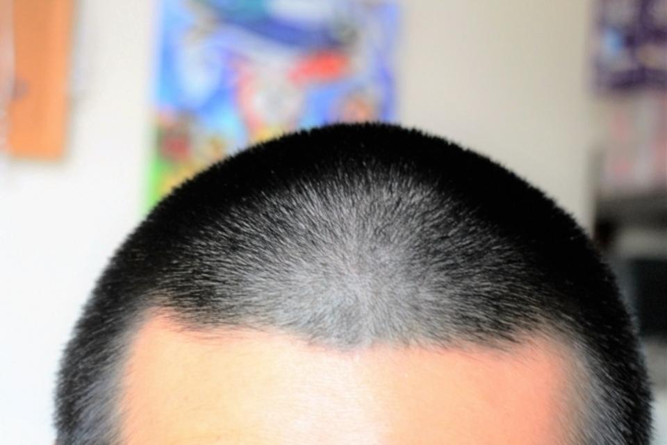 バリカンの長さは何段階?枚と分でどう違う?長さ別おすすめヘアスタイルも比較!
