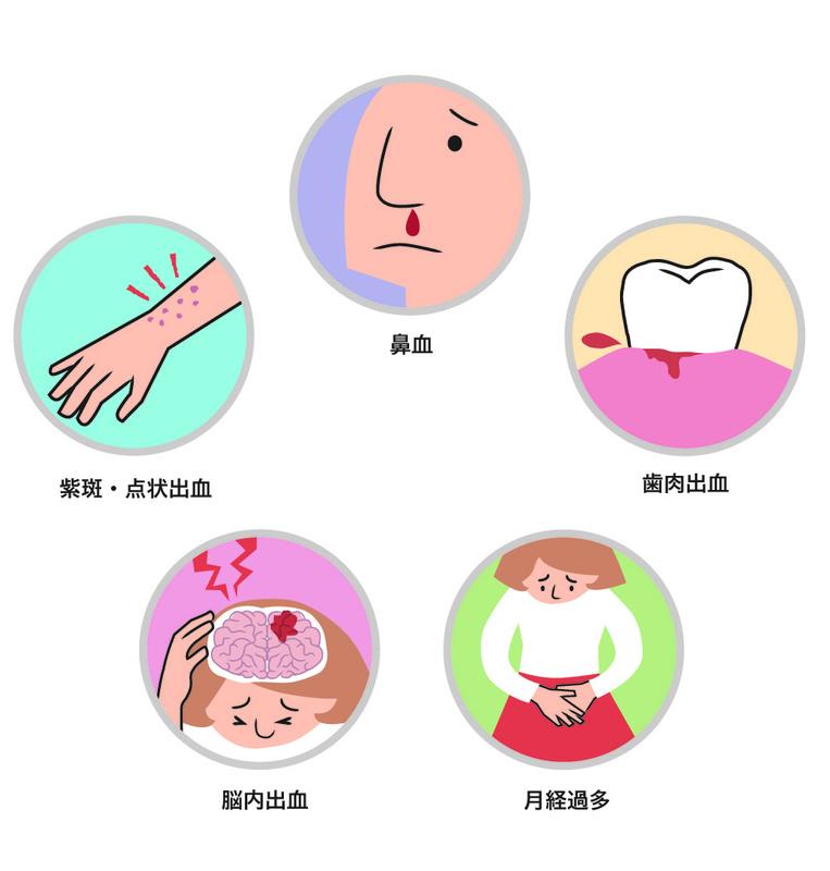 病 紫斑 突発 性