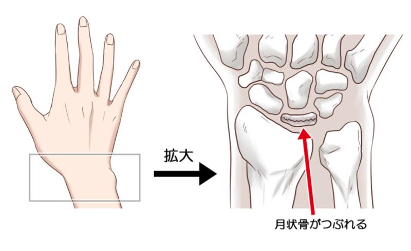 手首 が 痛い 手をつくと手首が痛い原因は?真ん中・親指側・小指側など全ての痛み...