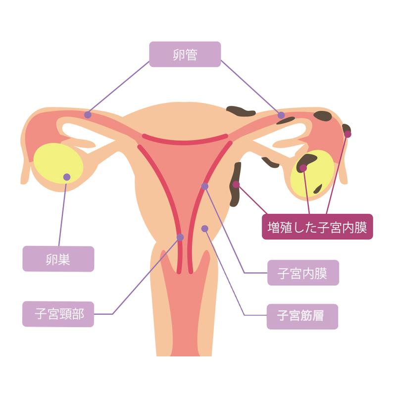 症 膜 子宮 治療 内