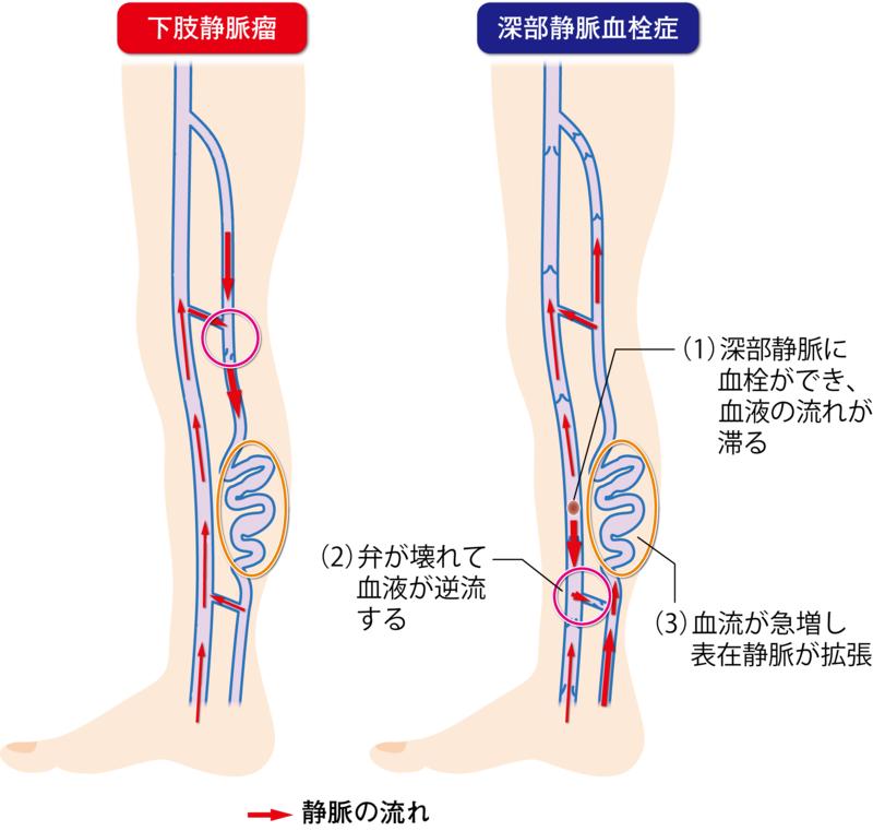瘤 下肢 静脈