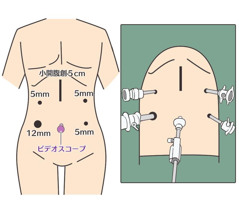 胃がんの腹腔鏡手術−現状と今後の進歩 | メディカルノート