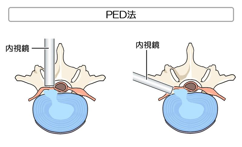 治療 椎間板 ヘルニア
