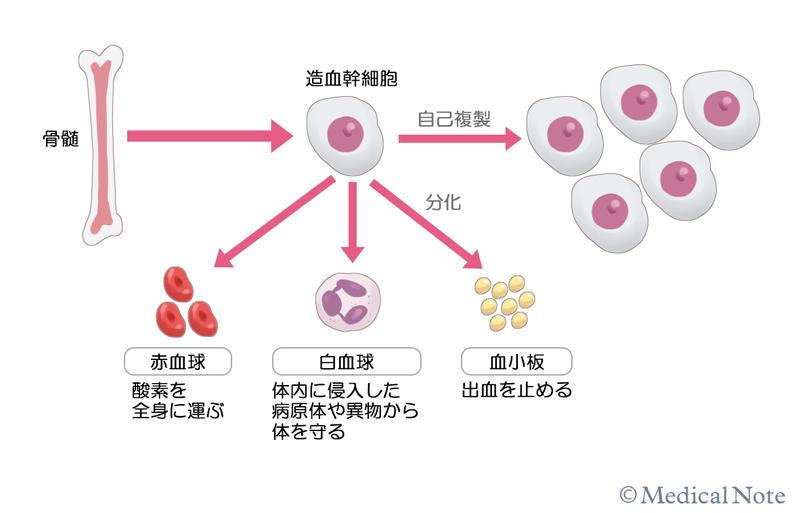 性 白血病 骨髄 原因 急性