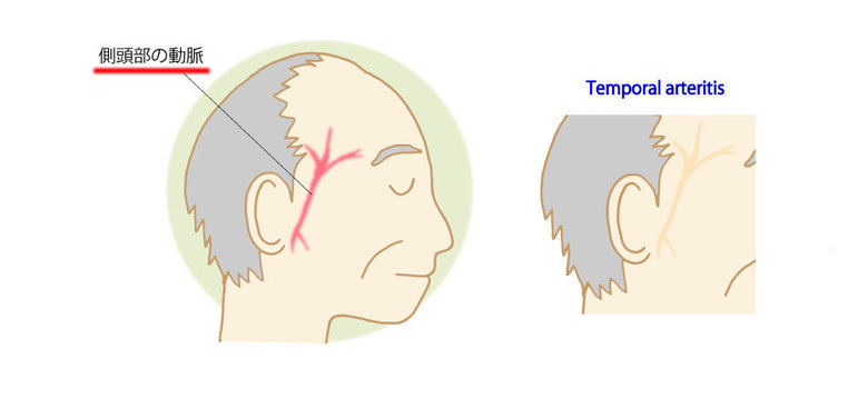 巨細胞性動脈炎(側頭動脈炎)とは―膠原病として数少ない緊急疾患 ...