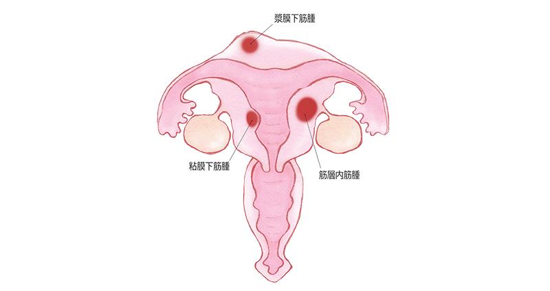 子宮筋腫とはどんな病気 メディカルノート
