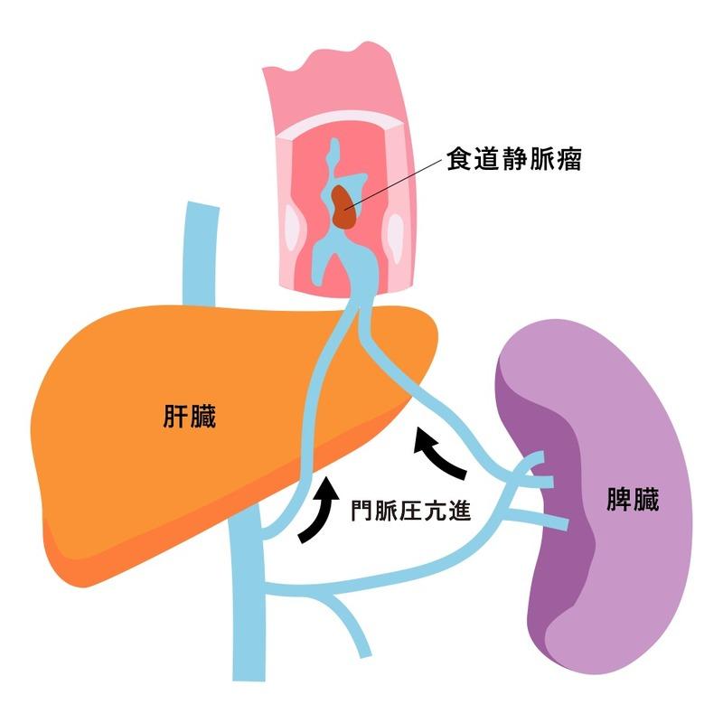 瘤 食道 症状 静脈 【肝硬変】食道・胃静脈瘤とは?治療や破裂などについて<看護師国家試験>