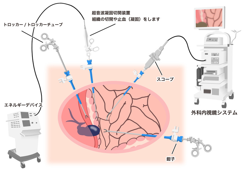 大腸がんの内視鏡手術(腹腔鏡手...