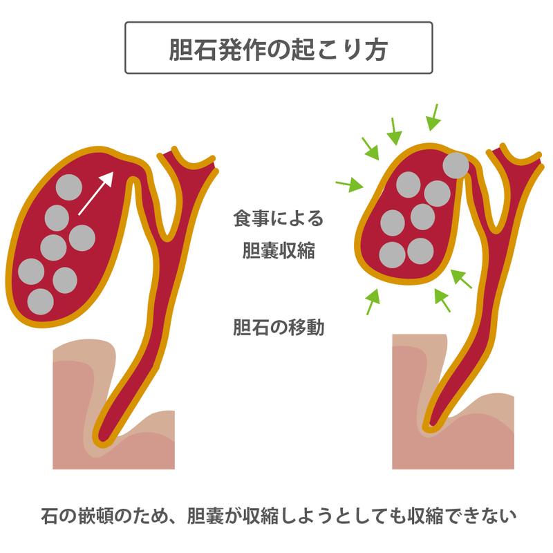 胆嚢 炎 症状 チェック