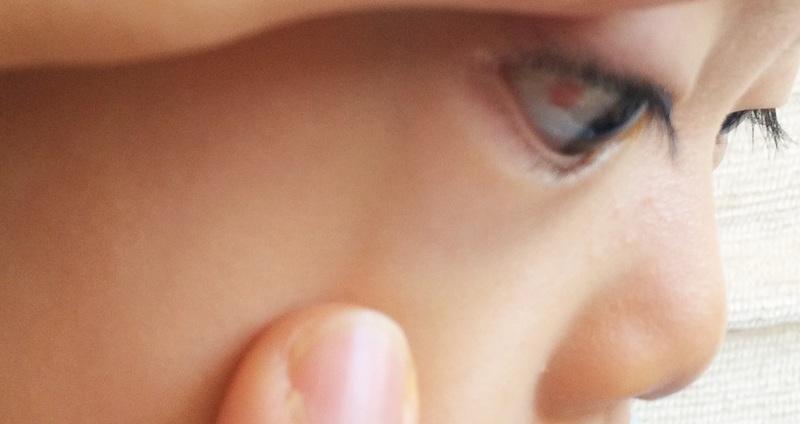 結膜下出血とは 白目が真っ赤になったときの対処法 メディカルノート