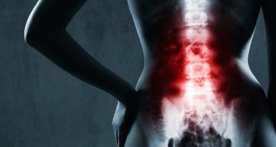 子宮頸椎間板ヘルニアの手術はどのくらい続きますか